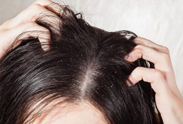 anti dandruff shampoo for oily hair