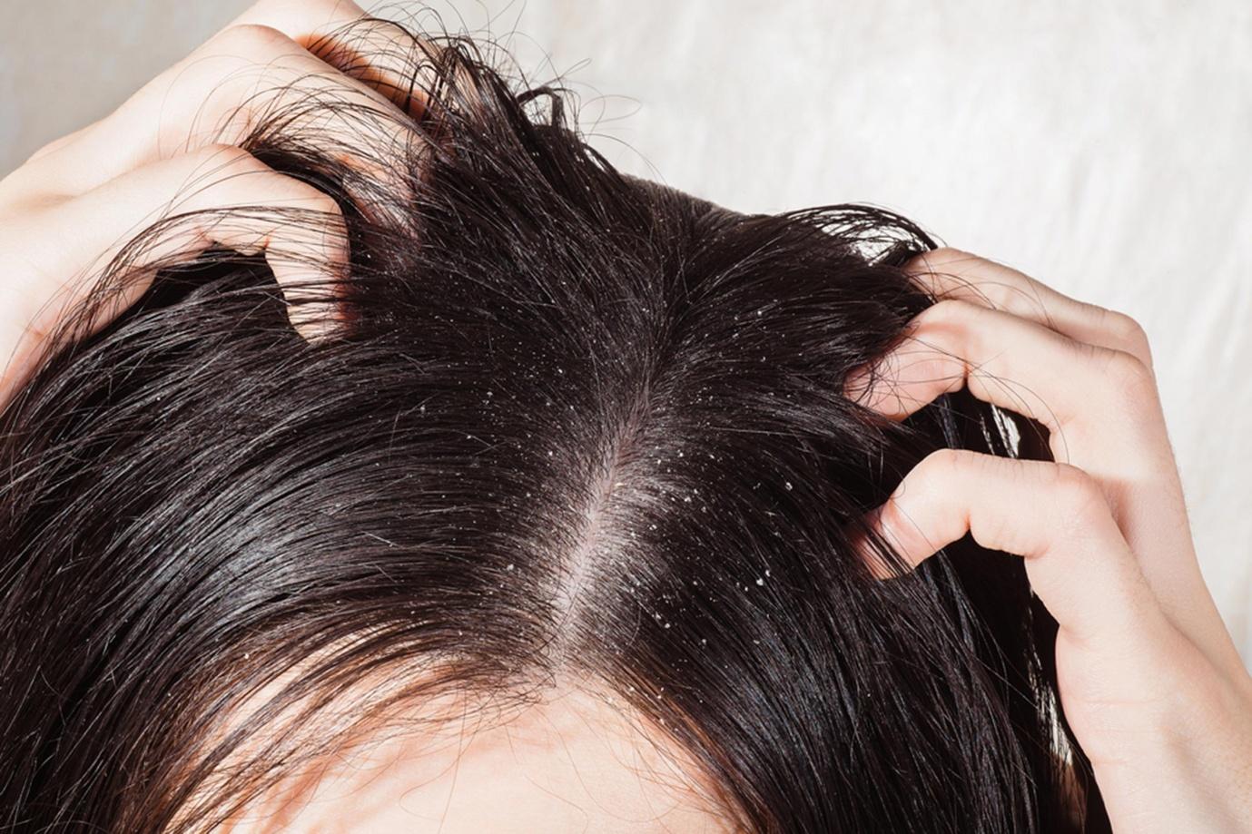 anti dandruff shampoo for oily hair