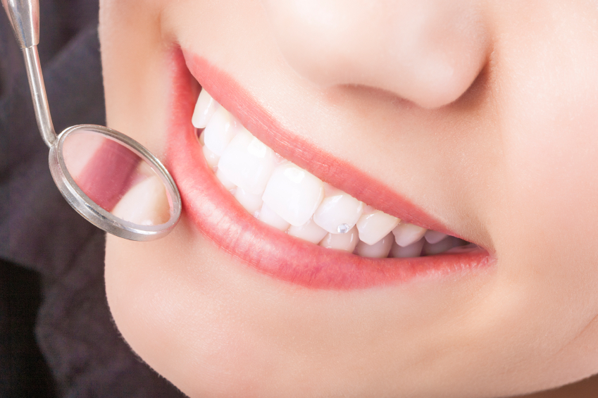 Six-Month Smiles Program – Introduction & Benefits You Should Know